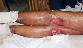decubitus ulcers: causes, symptoms,digest ground, Skeleton