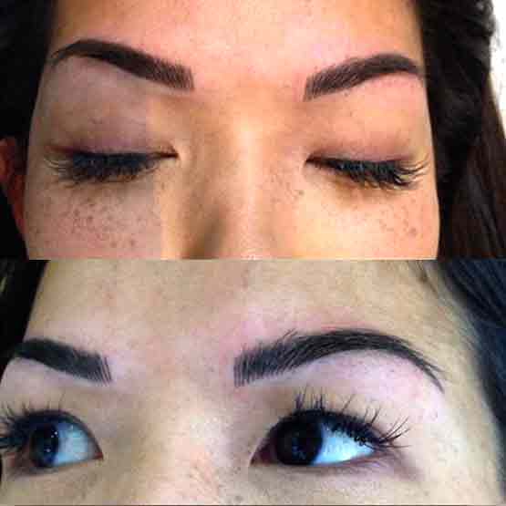 Treadment for Cosmetic Eyebrow Tattoo