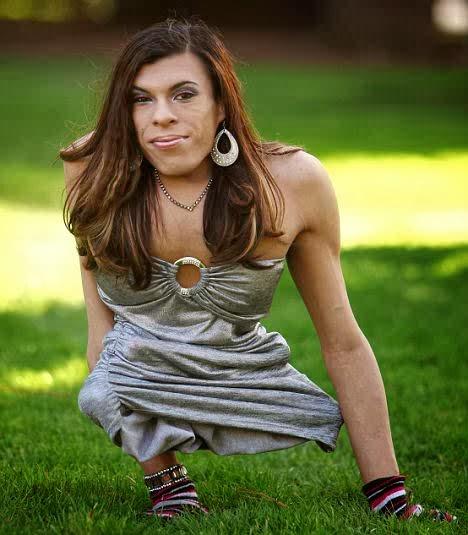 Transgender performer born with Caudal Regression