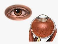 Problemas De Los Ojos Por Diabetes