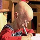 Penyakit Progeria