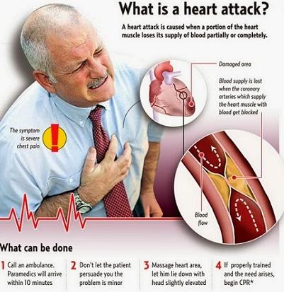Heart Attack Ka Ilaj