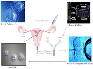 proses bayi tabung di laboratorium
