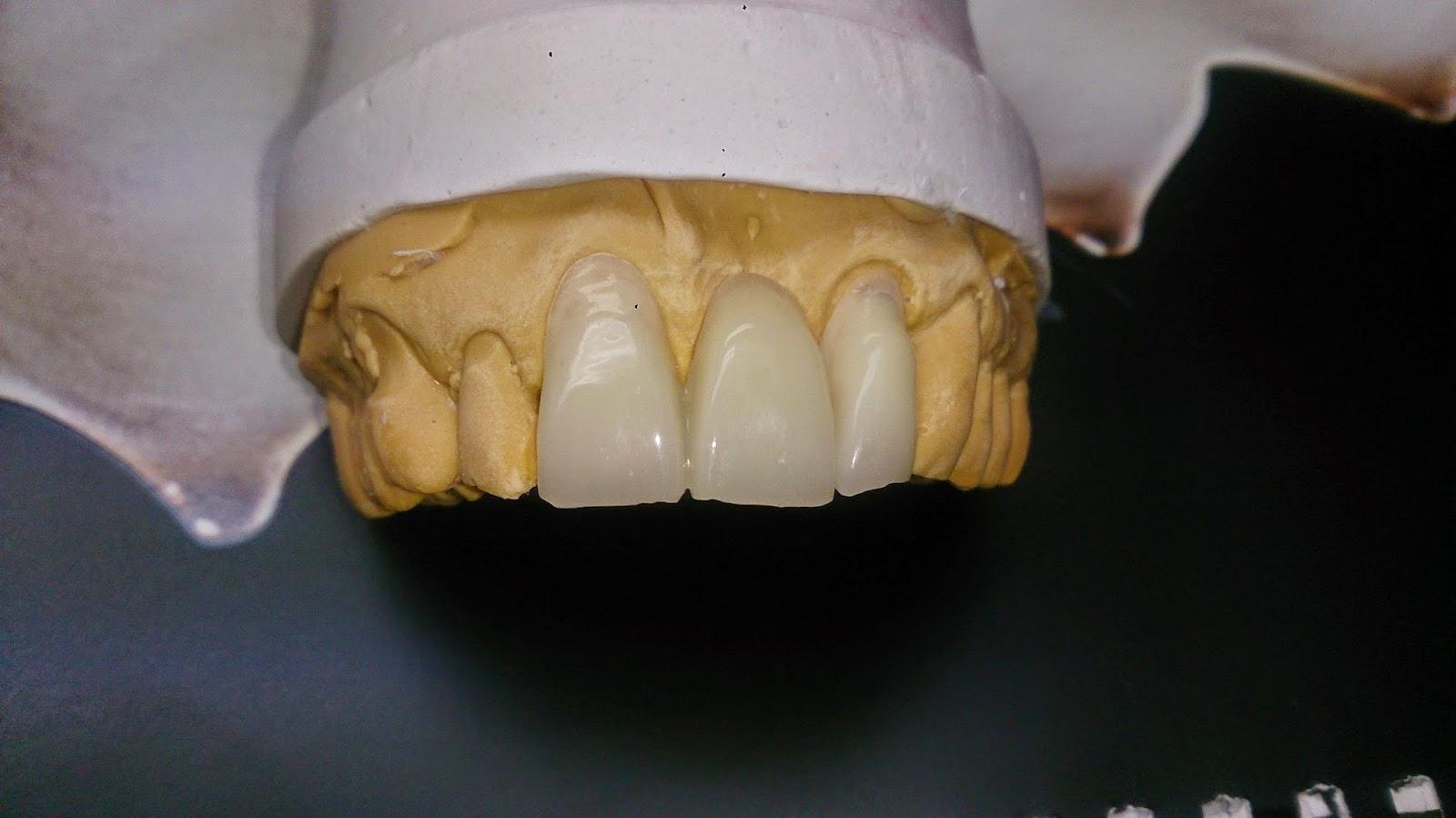 blog prothesiste dentaire Le blanchiment dentaire ou plutôt  éclaircissement dentaire  permet d'éclaircir la teinte des dents cette technique consiste à utiliser un agent de.