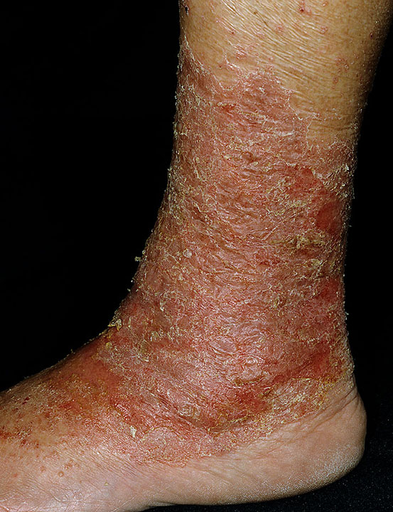 how to avoid red bumps lower legs shaving