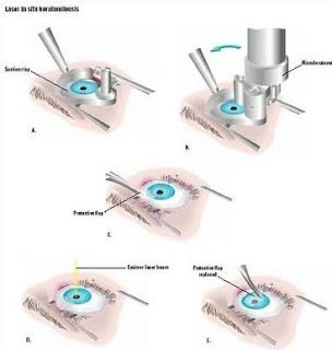 Lasik Eye Surgery 2013 2