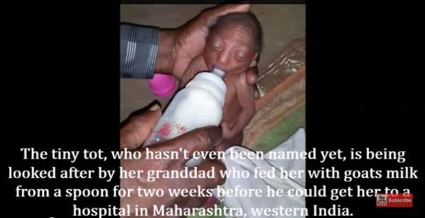 ibu bapa kejam sanggup buang anak sendiri kerana berkedut