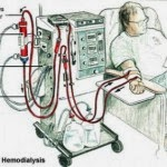 Knowing How to Work Hemodialysis and Peritoneal Dialysis - How hemodialysis work