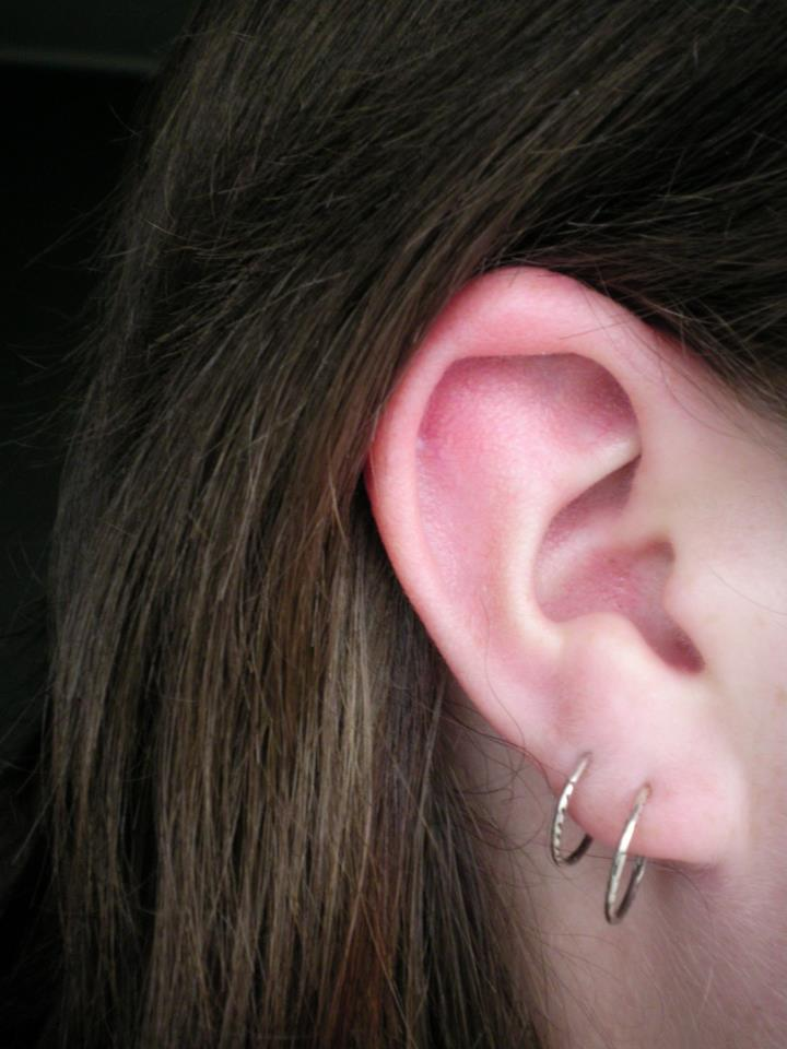 how to get rid of keloids from tragus piercing