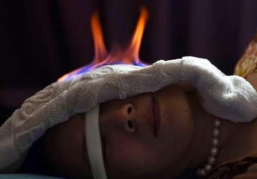 terapi api