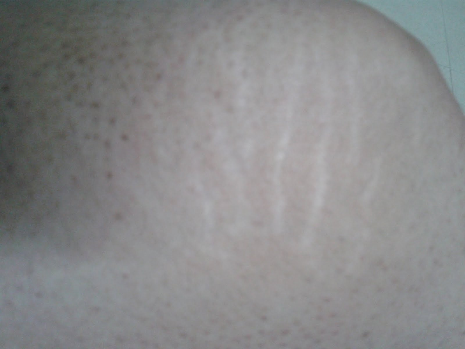 laser pour le visage cicatrice. Black Bedroom Furniture Sets. Home Design Ideas