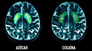 ¿Qué hace el azúcar con nuestro cerebro?