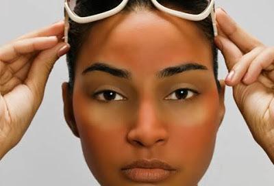 African American With Sun Burn