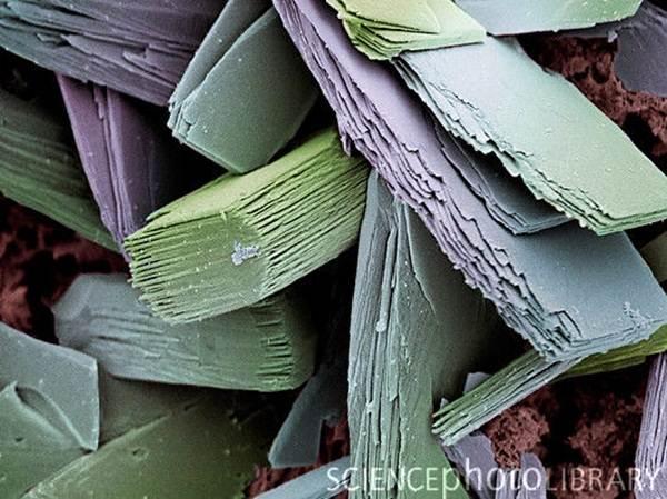 darah-beku-bawah-mikroskop