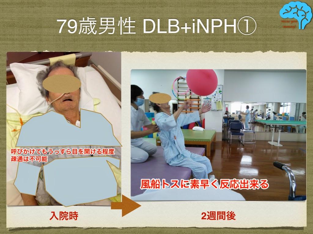 2週間で改善したDLB患者