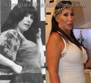 Moria Casán y sus cirugías de senos