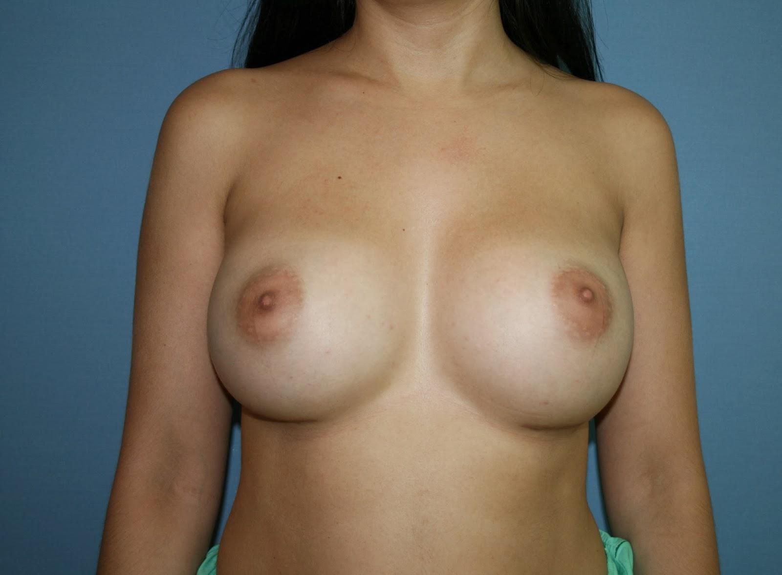 aumento_mamas_cirujano_plastico