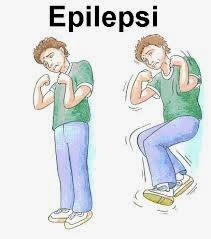 informasi tentang penyakit epilepsi