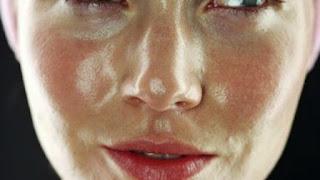 pelle grassa, punti neri, pori dilatati, acne, trattamenti specifici per pelle grassa