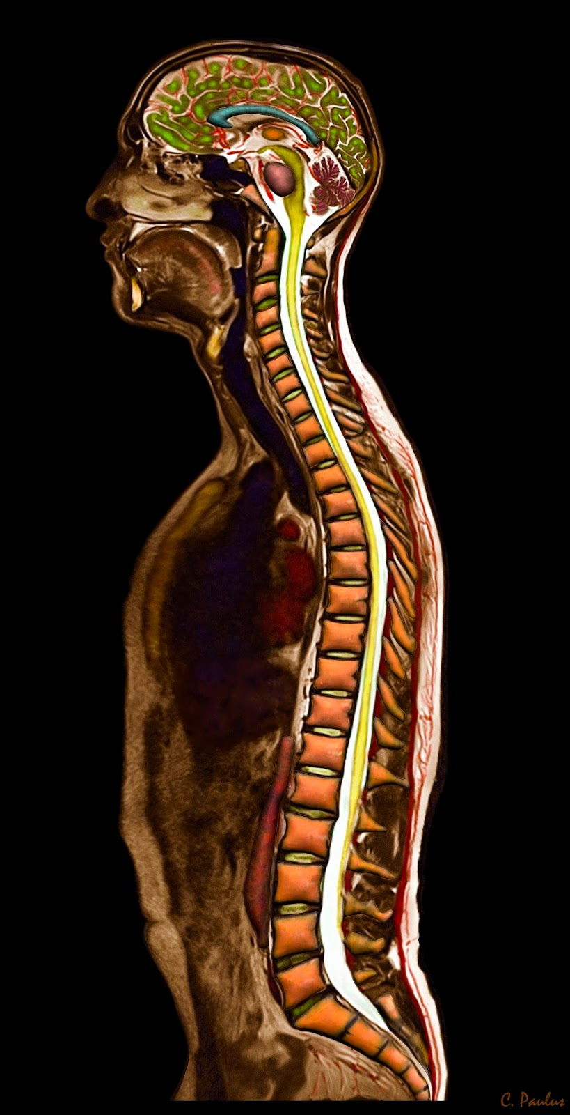 3-D Color MRI Human Body Spine Anatomy