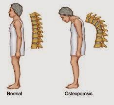 Cara Pengobatan Penyakit Osteoporosis