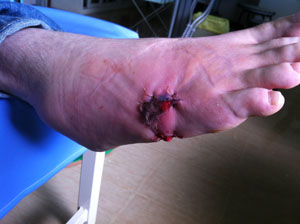 Foot after surgery and stitches.