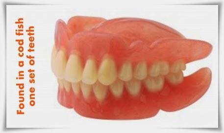 Lost dentures