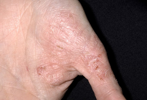 eczema dermatitis treatment