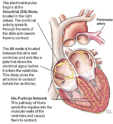 sistem listrik disritmia aritmia jantung