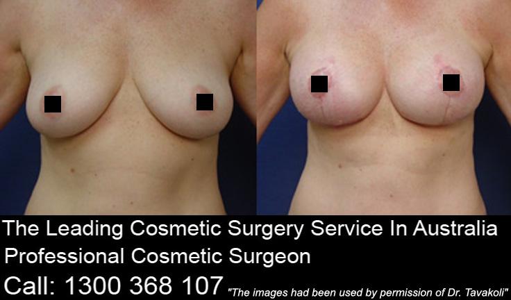 Breast lift scar healing