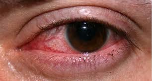 Cara mengatasi mata merah dan bengkak