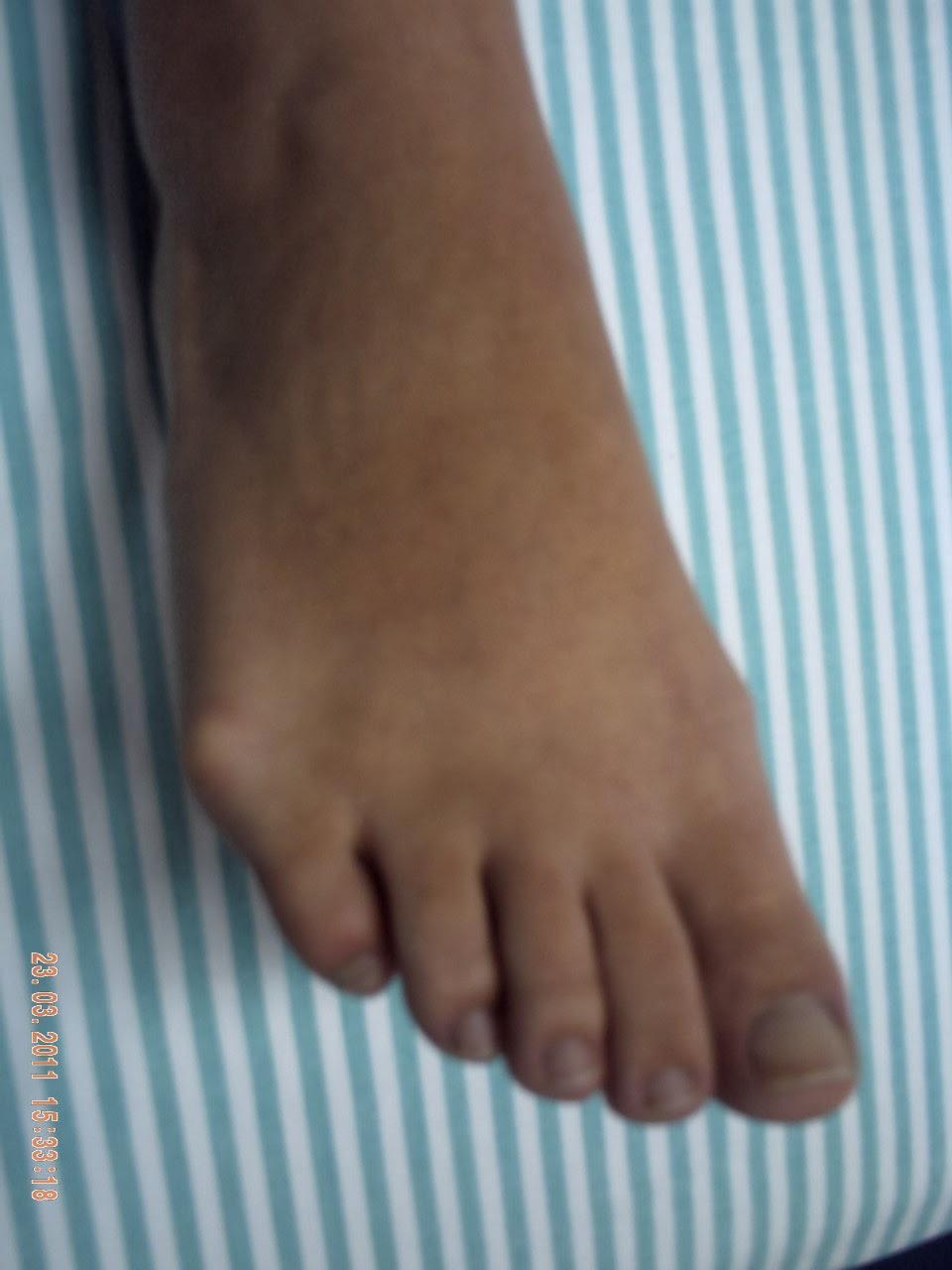 Medicina de um fungo de respostas de pés