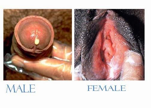 Beginilah obat penyakit kelamin mengeluarkan nanah