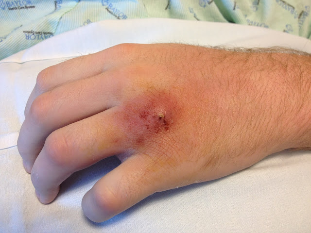 hand staph infection