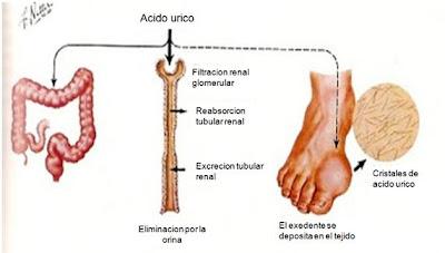 acido urico dedo gordo alimentos permitidos para acido urico alto tengo el acido urico alto que debo tomar