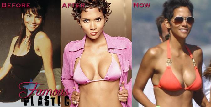100 plastic surgerySize C Breast Implants