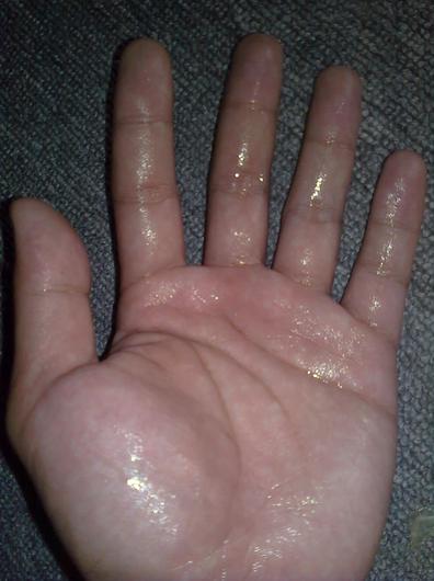 Obat Telapak Tangan Sering Berkeringat