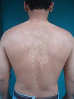 http://mustahabbah.blogspot.com/2015/11/ini-dia-tips-mengobati-penyakit-kurap.html