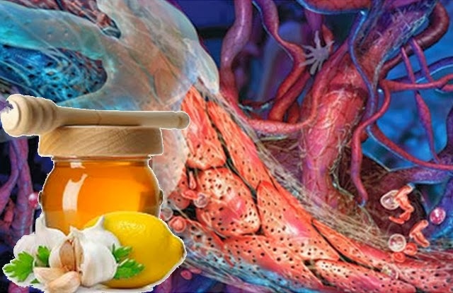 очистка сосудов от холестерина чеснок лимон видео