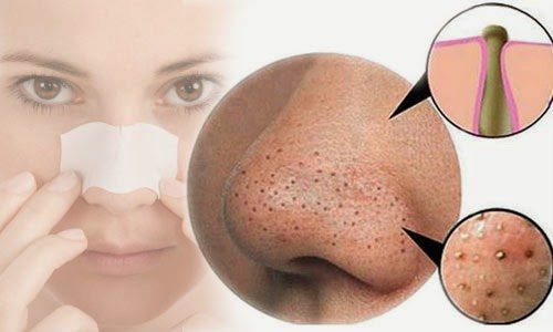 HOW TO Romove Blackhead with a Blemish Extractor. Get rid of blackheads and clogged pores. How to Use Comedone Extractor to Remove Blackheads in 8 Easy Steps. Removing Blackheads & Whiteheads Using A Comedone Extractor Tool HD. Dermatology Treatments : How to Use Blackhead Removal Tool. How to Use Comedone Extractor Safely. how to extract ur own blackhead at home. Blackhead Removal SHOCKING Video. Black & White Heads On Nose. Closeup of blackhead removal from the inner ear. How to Remove Blackheads from Nose and Face with Blackhead Extractor. A Blackhead Lover's Dream. Best Blackhead Remover EVER. Gold Mine Of Black Heads On Nose. Esthetician Professional Extractions | Pro Blackhead Extraction | Pimple Pop. Black head removal. Professional Extractions Facial Lift & Pump | Blackhead Extraction | Esthetician Training Tutorial. Blackhead extractor, blackhead removal, how to remove blackheads, comedone extractor, blackhead removal tool.  how to get rid of acne scars,best way to get rid of acne scars,get rid of acne scars fast,how to get rid of acne scars naturally,ways to get rid of acne scars,products to get rid of acne scars,home remedies to get rid of acne scars,natural way to get rid of acne scars,what can i use to get rid of acne scars,can you get rid of acne scars daiserz89, asian beauty guru, acne scars, acne tips, how to treat acne, how to lose weight, perfect beauty, giveaway, makeup, makeup giveaway, how to treat acne, dermaroller, how to lighten acne scars, laser for acne, collagen for skin, dermaroller