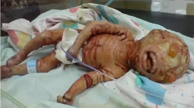 Παράξενες Εγκυμοσύνες και ασυνήθιστη παιδιά - το αποτέλεσμα ξένων εξωγήινων παρεμβάσεων;