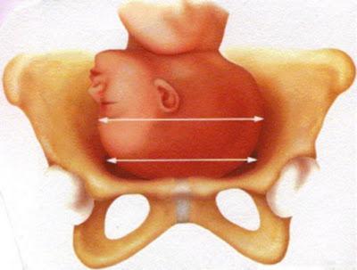 Tecnicos Radiologos: ¿Qué es la pelvimetría feto pélvica?
