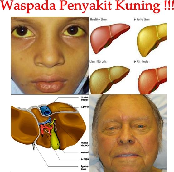 Pengobatan Tradisional Penyakit Kuning