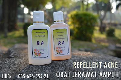 sabun jerawat terbaik di indonesia, sabun jerawat terbaik, sabun penghilang jerawat terbaik, sabun muka jerawat terbaik, sabun muka penghilang jerawat terbaik, sabun cuci muka penghilang jerawat terbaik, sabun jerawat yang bagus untuk pria, sabun jerawat yang ampuh, sabun jerawat yang ada di apotik, sabun jerawat yang aman, sabun jerawat yang bagus, sabun jerawat yang di jual di apotik, sabun jerawat yang paling ampuh, sabun jerawat yang paling bagus, sabun jerawat alami, sabun jerawat yang di jual di apotek.