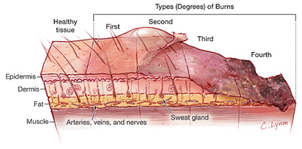 What causes edema in burns descargar