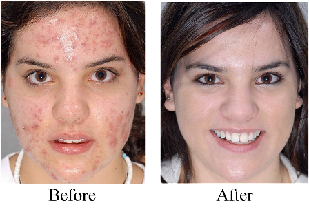 All About Home Improvement Exposed Acne Therapy Testimonials 100