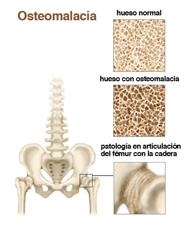 osteomalacia - causes, symptoms and treatments | nanda books, Skeleton