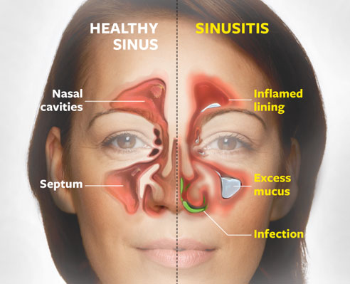 how to get rid of post nasal drip quickly