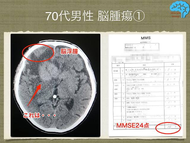 70代男性、物忘れ外来で見つかった脳腫瘍。