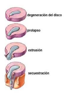 Cuerpo sano recibo osteopat a profesional hernia discal - Ejercicios en piscina para hernia discal l5 s1 ...
